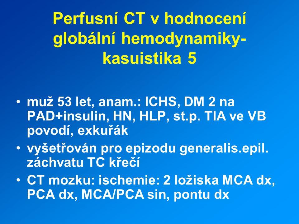 Perfusní CT v hodnocení globální hemodynamiky- kasuistika 5
