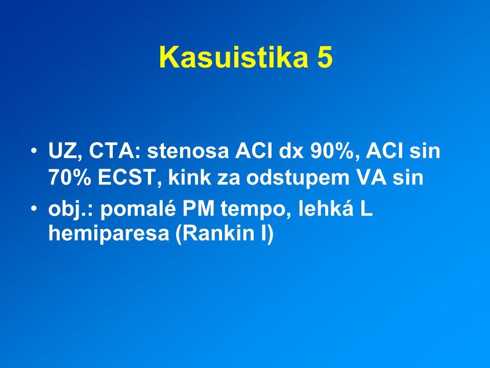 Kasuistika 5 UZ, CTA: stenosa ACI dx 90%, ACI sin 70% ECST, kink za odstupem VA sin.