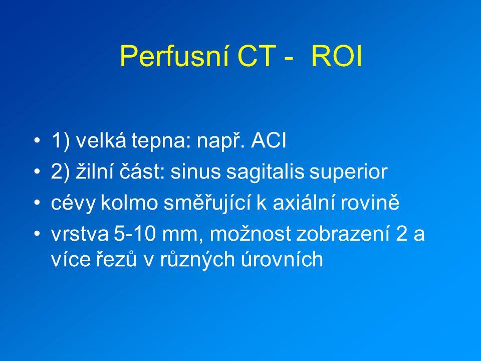Perfusní CT - ROI 1) velká tepna: např. ACI