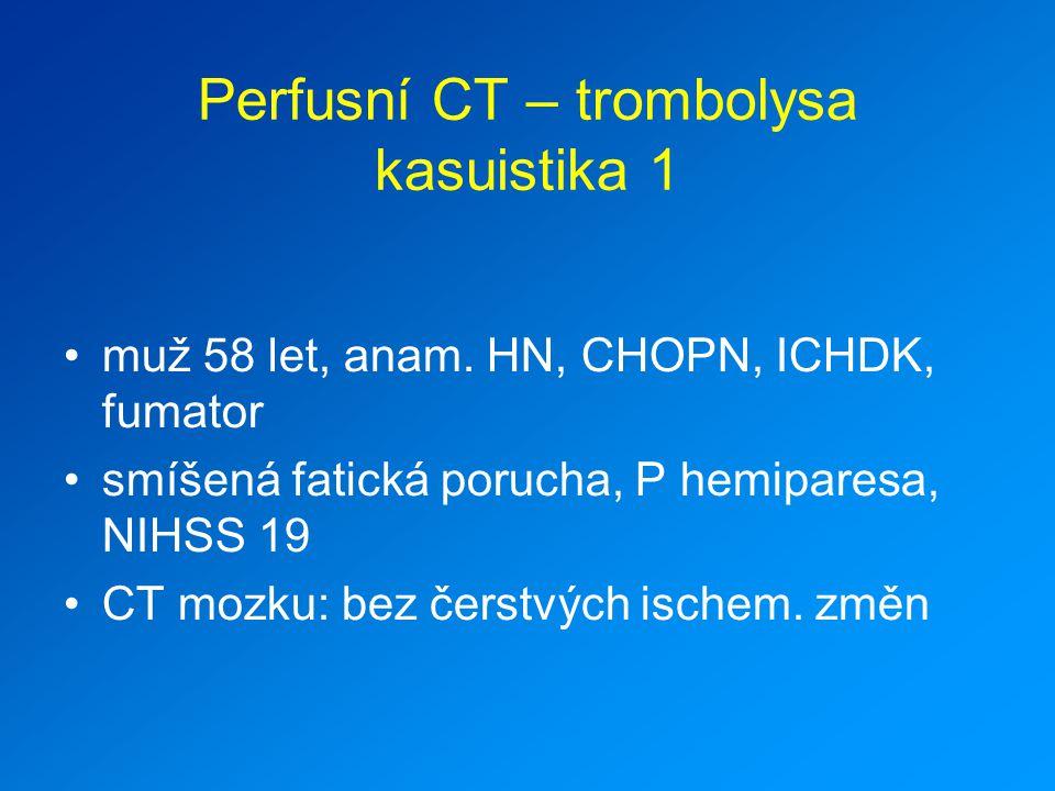 Perfusní CT – trombolysa kasuistika 1