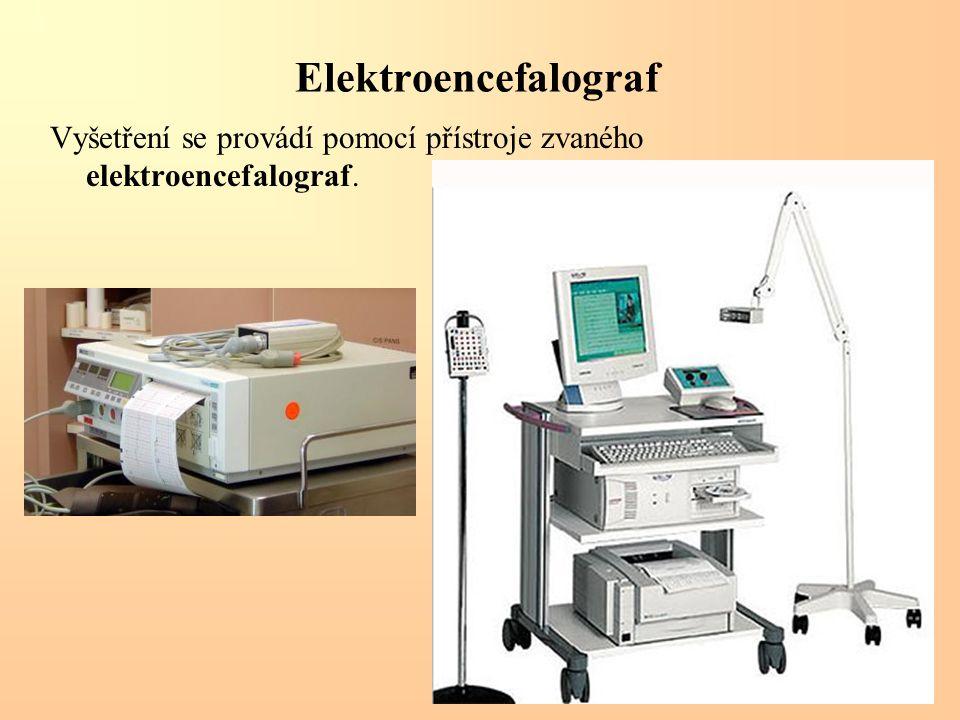 Elektroencefalograf Vyšetření se provádí pomocí přístroje zvaného elektroencefalograf.