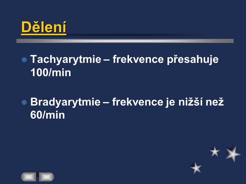 Dělení Tachyarytmie – frekvence přesahuje 100/min