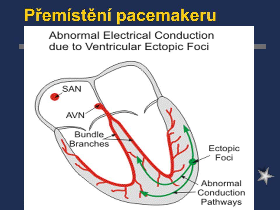 Přemístění pacemakeru