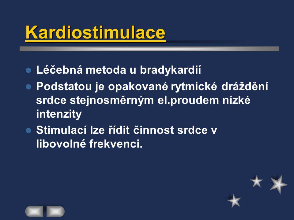 Kardiostimulace Léčebná metoda u bradykardií