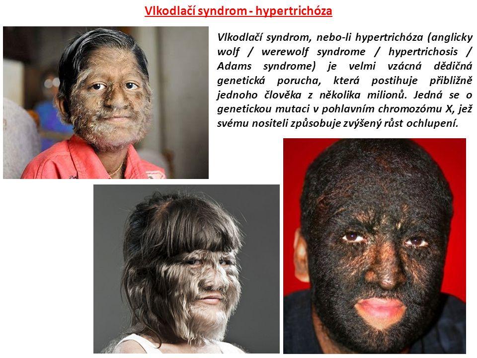 Vlkodlačí syndrom - hypertrichóza
