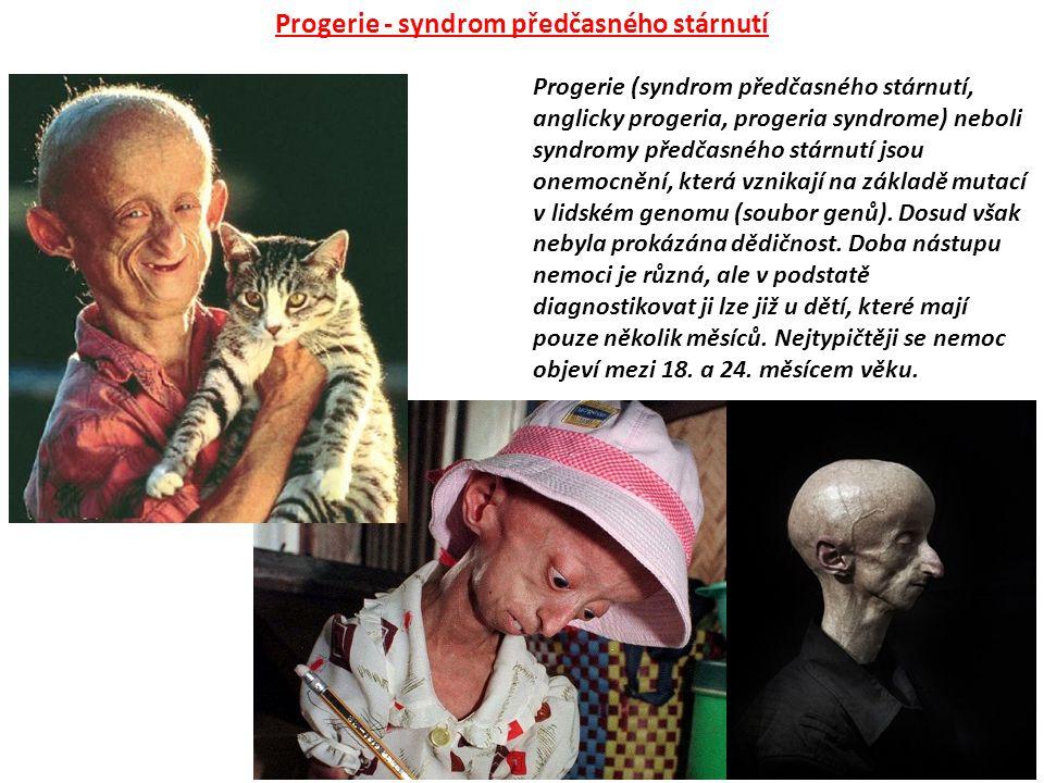 Progerie - syndrom předčasného stárnutí