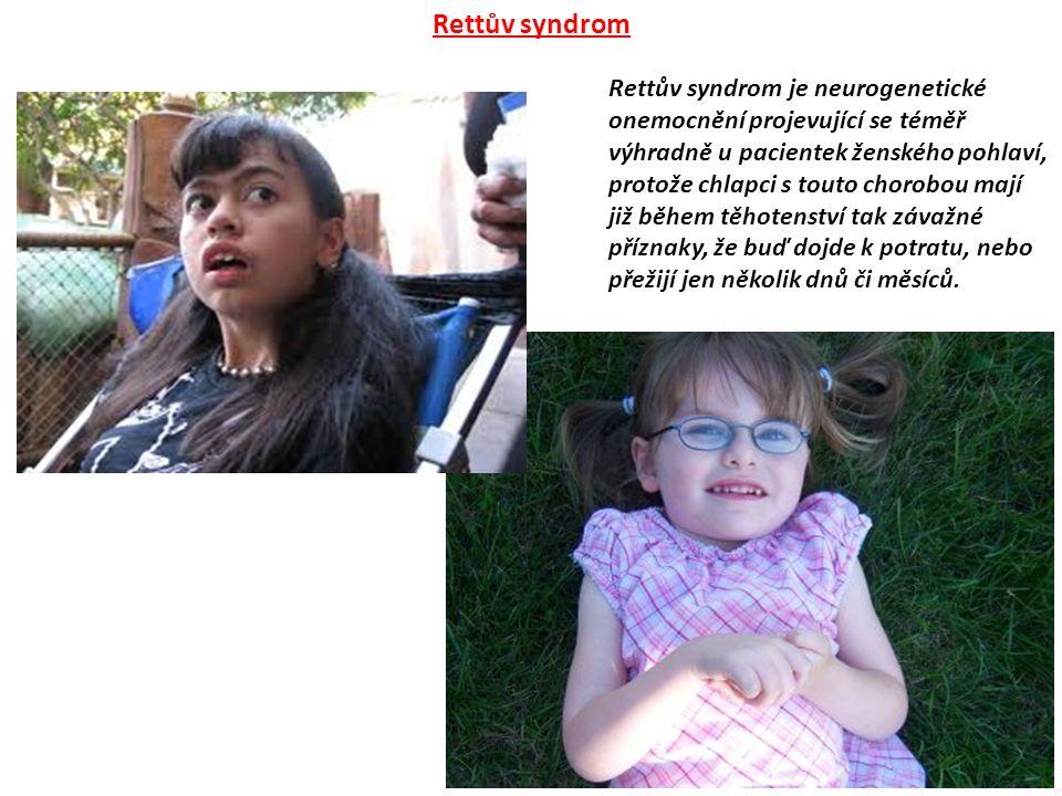 Rettův syndrom