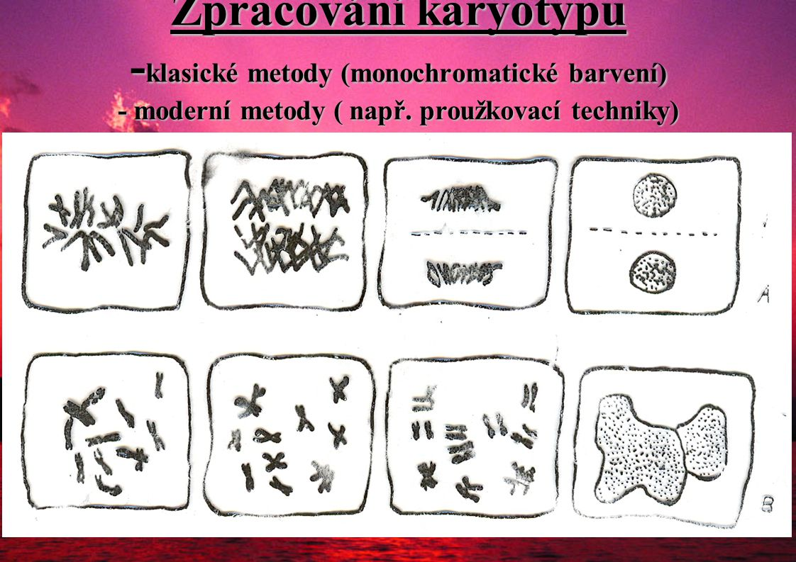 Zpracování karyotypu -klasické metody (monochromatické barvení) - moderní metody ( např.