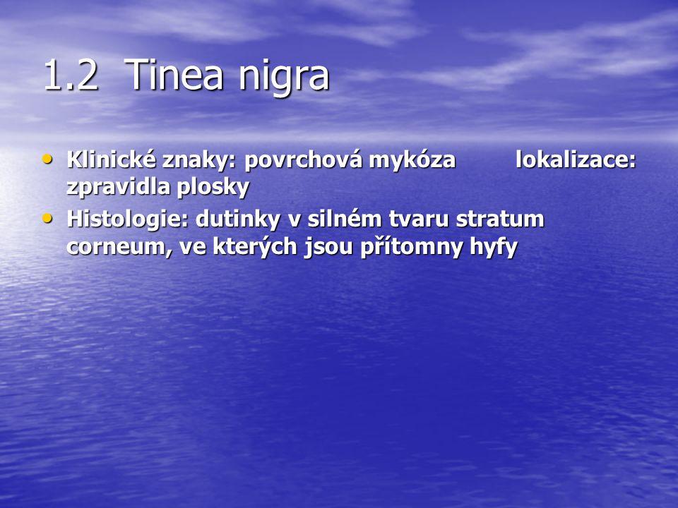 1.2 Tinea nigra Klinické znaky: povrchová mykóza lokalizace: zpravidla plosky.