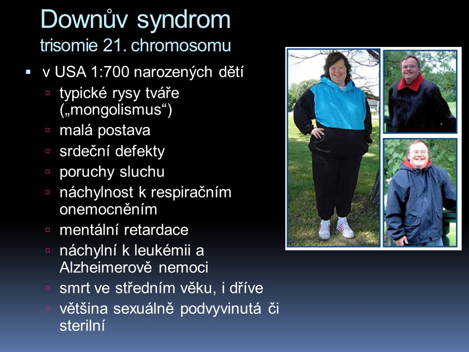 Downův syndrom trisomie 21. chromosomu