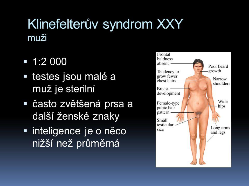 Klinefelterův syndrom XXY muži