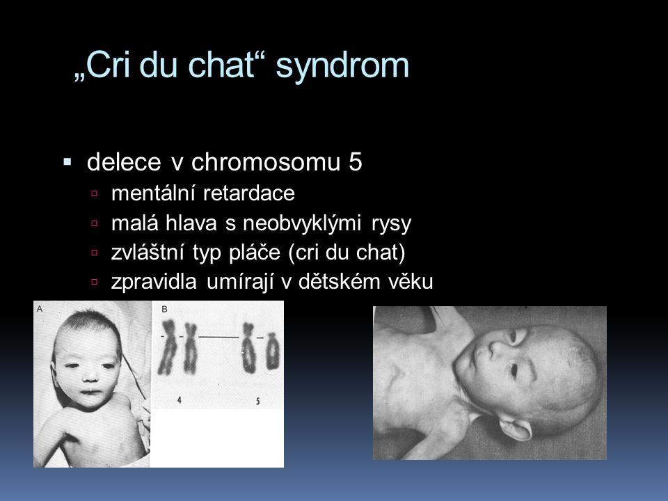 """""""Cri du chat syndrom delece v chromosomu 5 mentální retardace"""