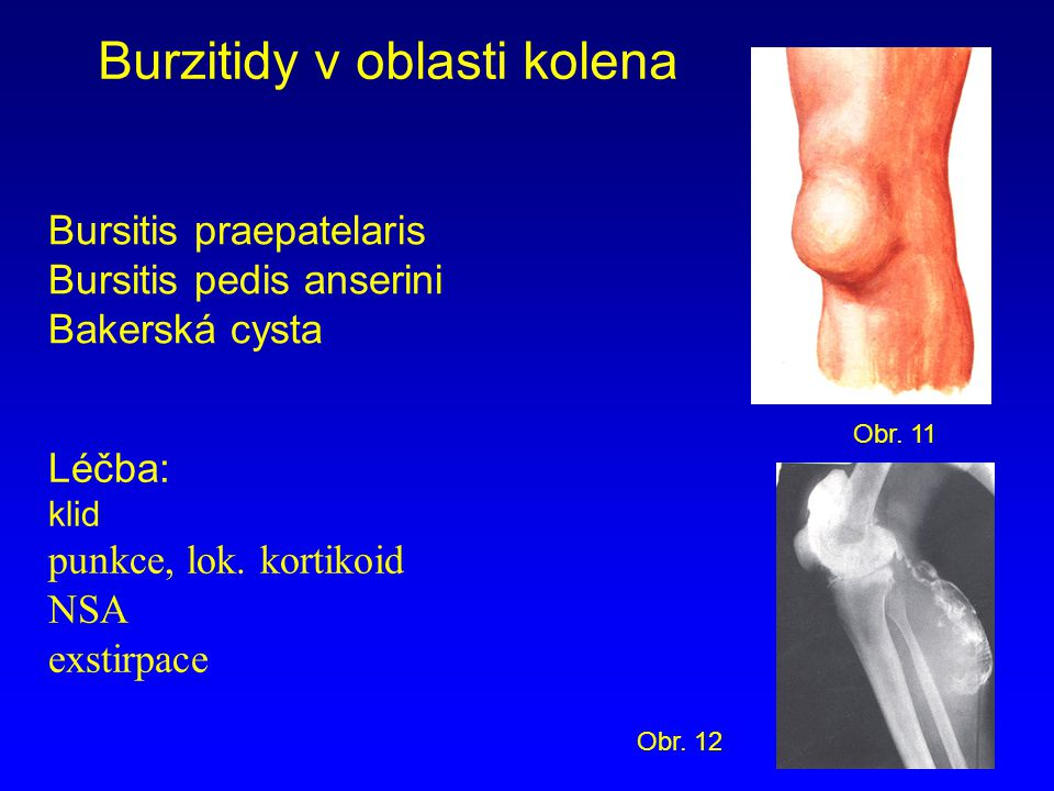 Burzitidy v oblasti kolena