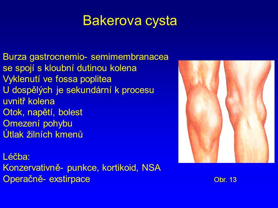 Bakerova cysta Burza gastrocnemio- semimembranacea