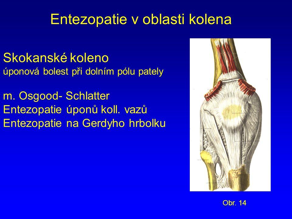 Entezopatie v oblasti kolena