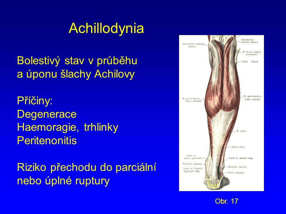 Achillodynia Bolestivý stav v průběhu a úponu šlachy Achilovy Příčiny: