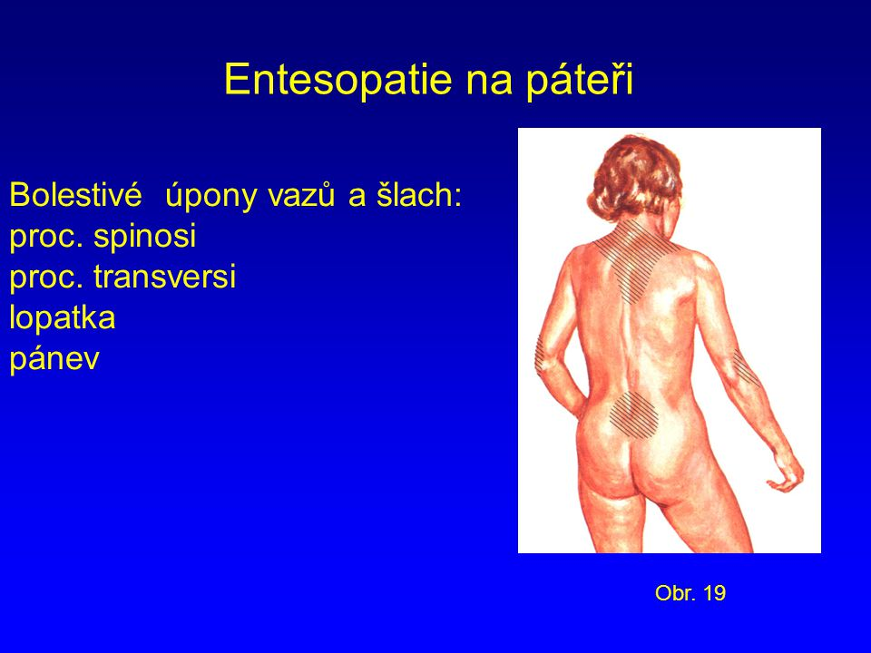 Entesopatie na páteři Bolestivé úpony vazů a šlach: proc. spinosi
