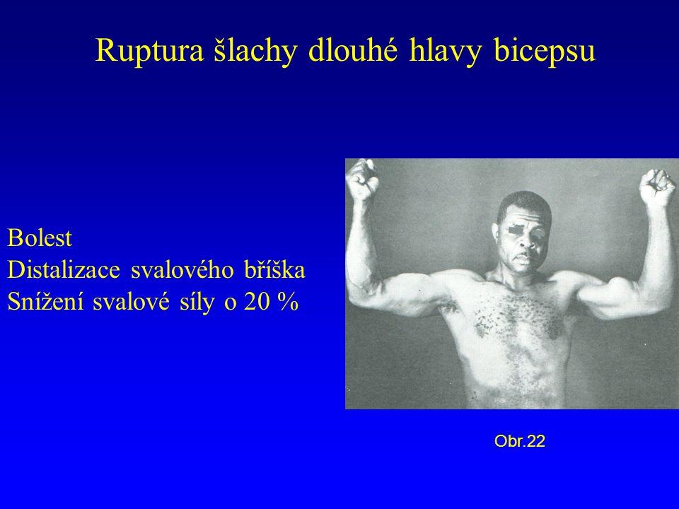Ruptura šlachy dlouhé hlavy bicepsu