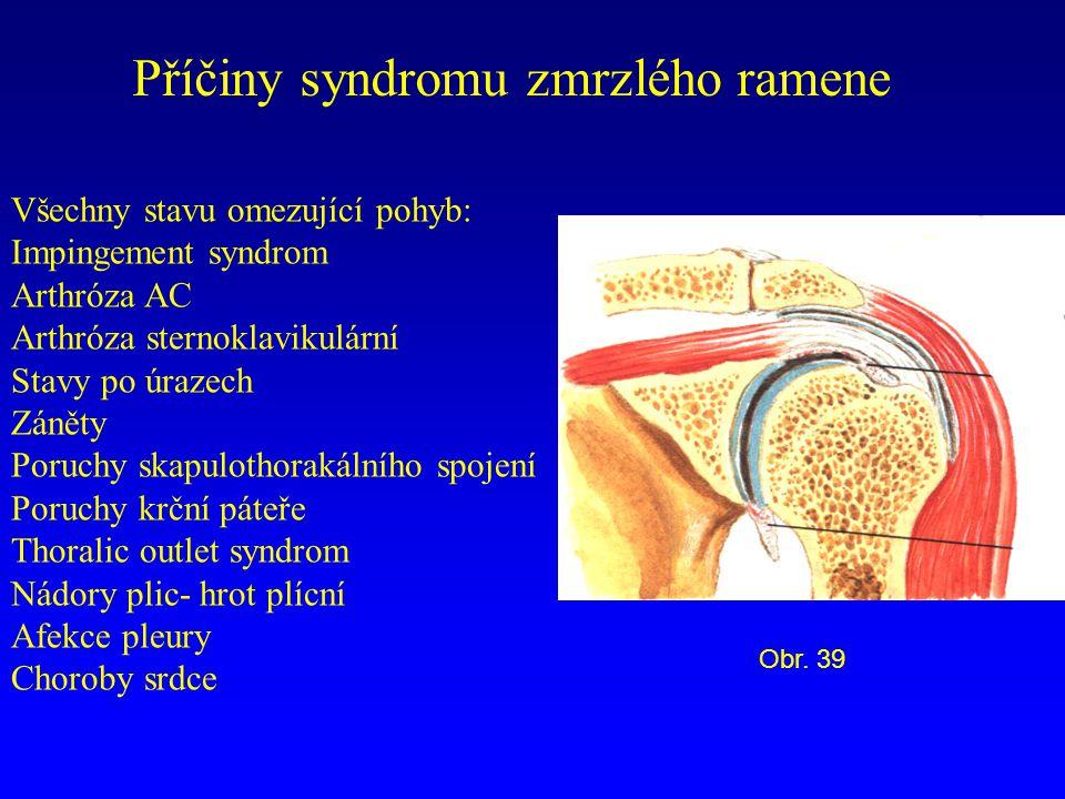 Příčiny syndromu zmrzlého ramene