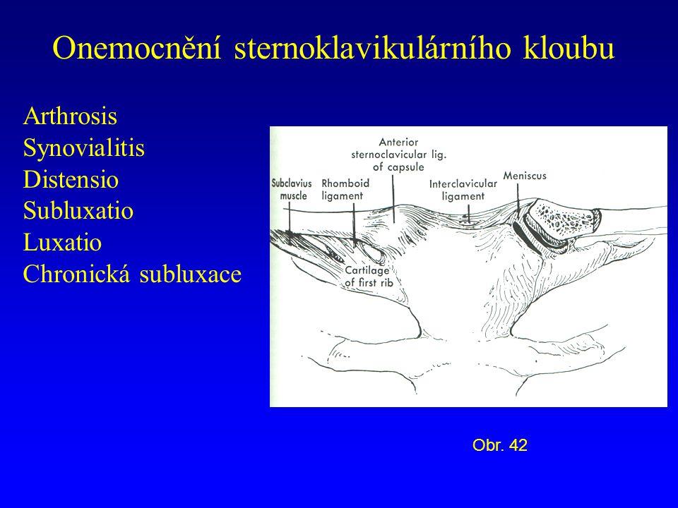 Onemocnění sternoklavikulárního kloubu