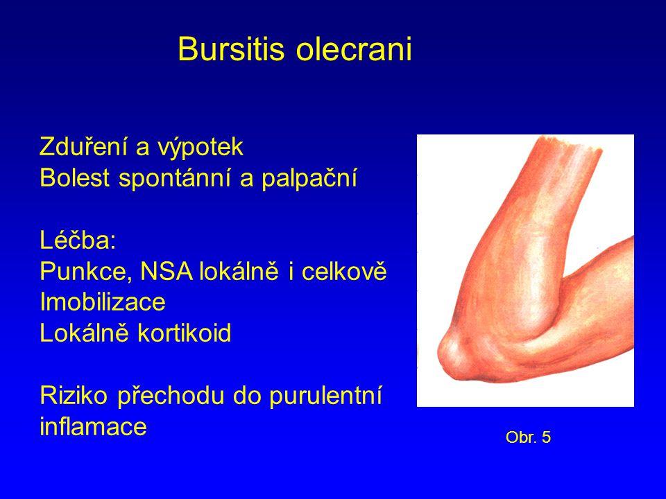 Bursitis olecrani Zduření a výpotek Bolest spontánní a palpační Léčba: