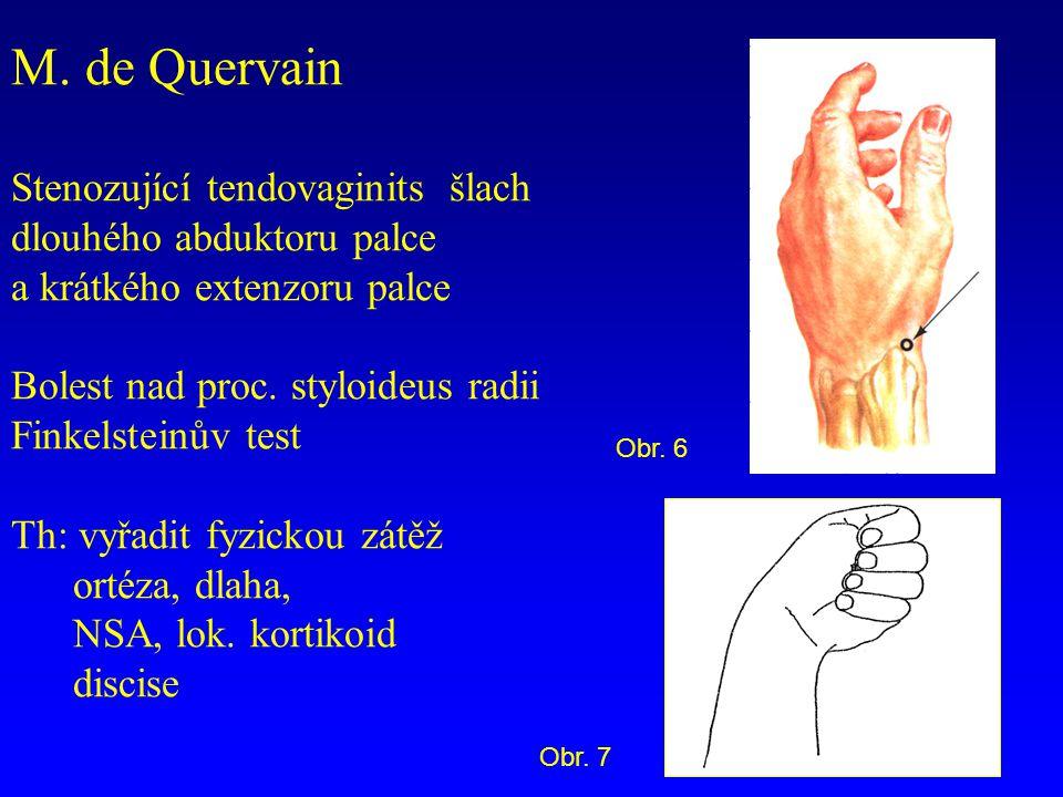 M. de Quervain Stenozující tendovaginits šlach