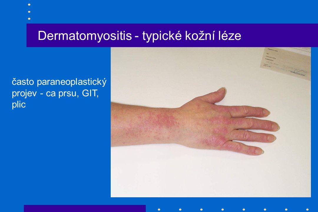 Dermatomyositis - typické kožní léze