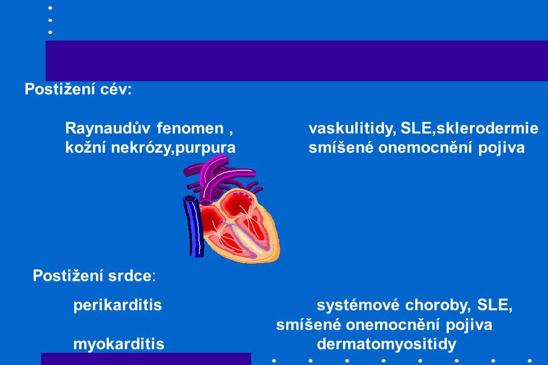Postižení cév: Raynaudův fenomen , vaskulitidy, SLE,sklerodermie. kožní nekrózy,purpura smíšené onemocnění pojiva.