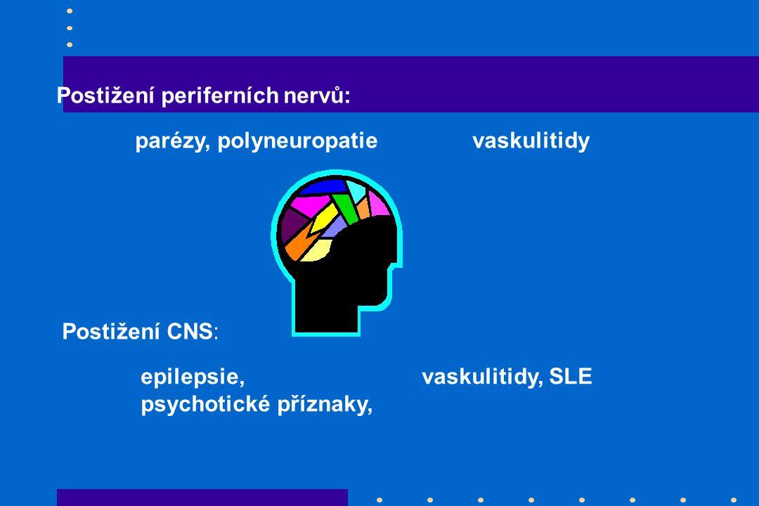 Postižení periferních nervů: