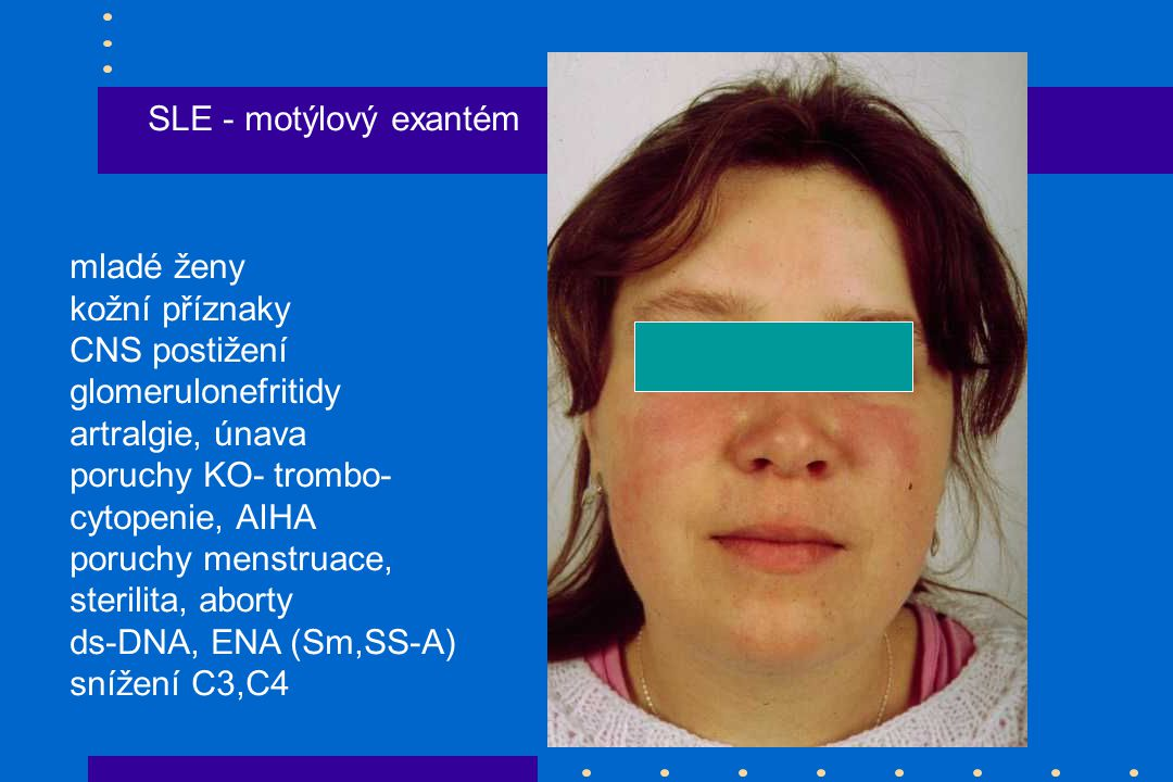 SLE - motýlový exantém mladé ženy. kožní příznaky. CNS postižení. glomerulonefritidy. artralgie, únava.