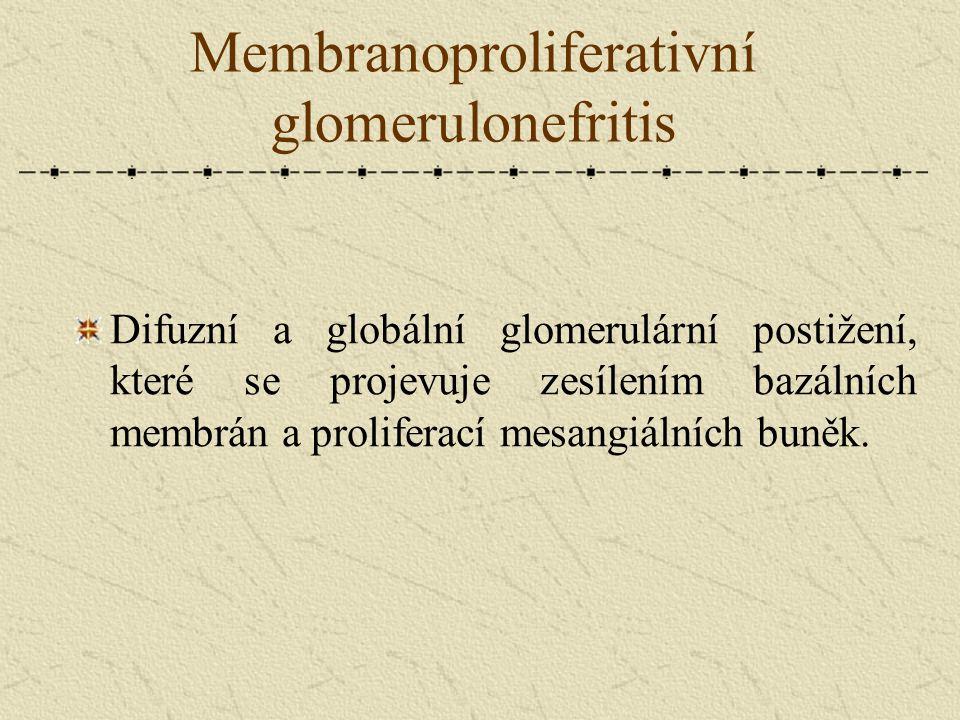 Membranoproliferativní glomerulonefritis