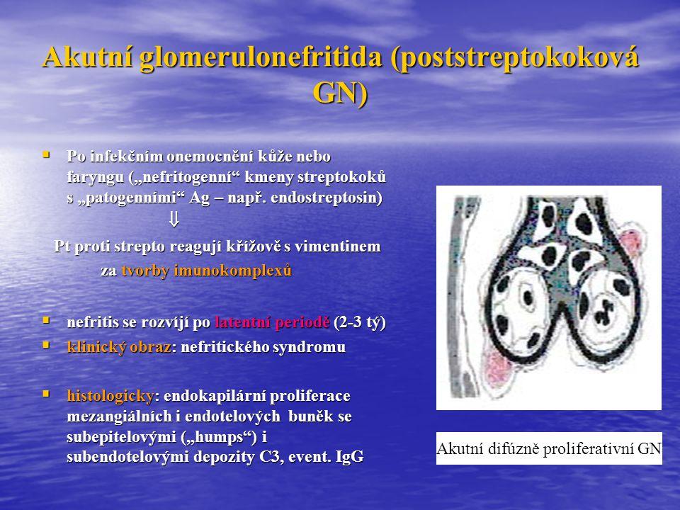 Akutní glomerulonefritida (poststreptokoková GN)