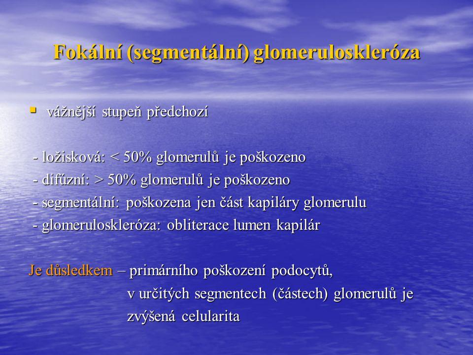 Fokální (segmentální) glomeruloskleróza