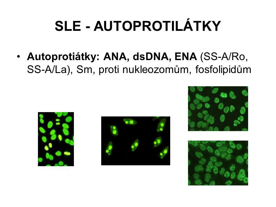 SLE - AUTOPROTILÁTKY Autoprotiátky: ANA, dsDNA, ENA (SS-A/Ro, SS-A/La), Sm, proti nukleozomům, fosfolipidům.
