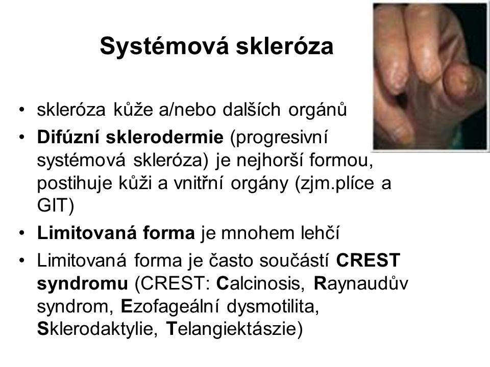 Systémová skleróza skleróza kůže a/nebo dalších orgánů