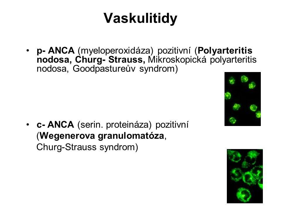Vaskulitidy p- ANCA (myeloperoxidáza) pozitivní (Polyarteritis nodosa, Churg- Strauss, Mikroskopická polyarteritis nodosa, Goodpastureův syndrom)