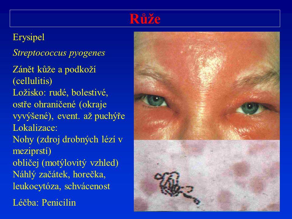 Růže Erysipel Streptococcus pyogenes Zánět kůže a podkoží (cellulitis)
