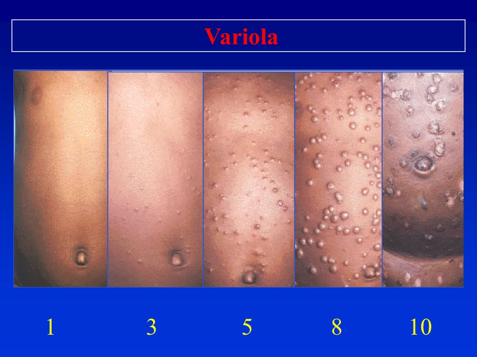 Variola 1 3 5 8 10