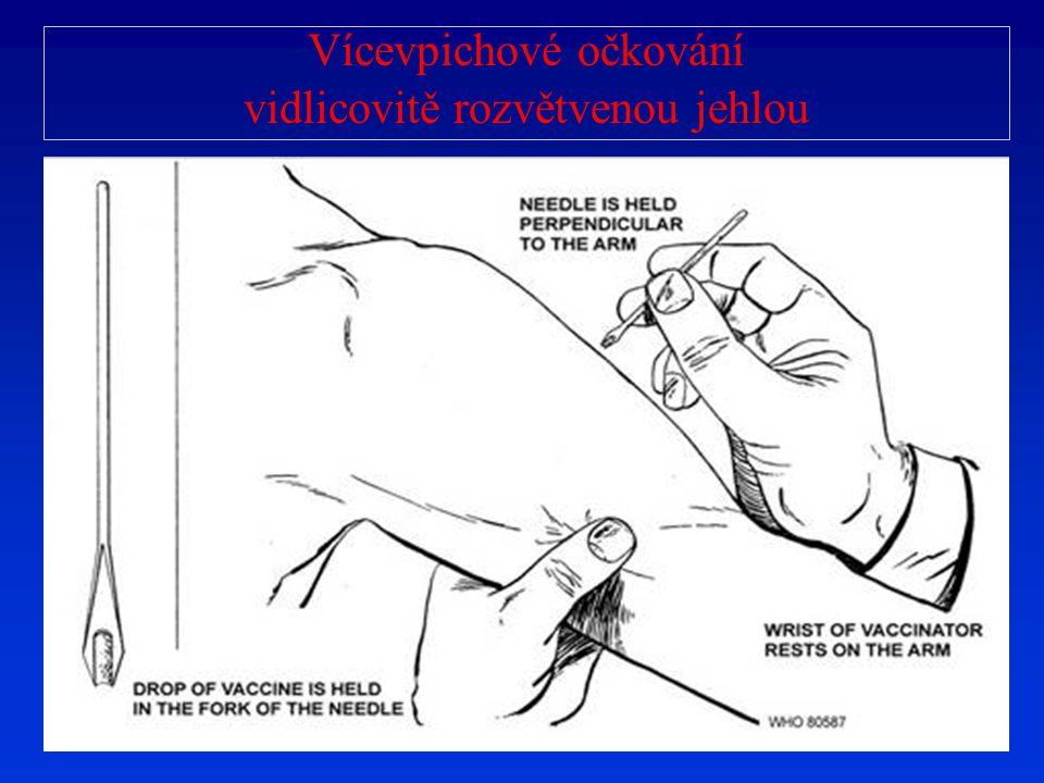 Vícevpichové očkování vidlicovitě rozvětvenou jehlou