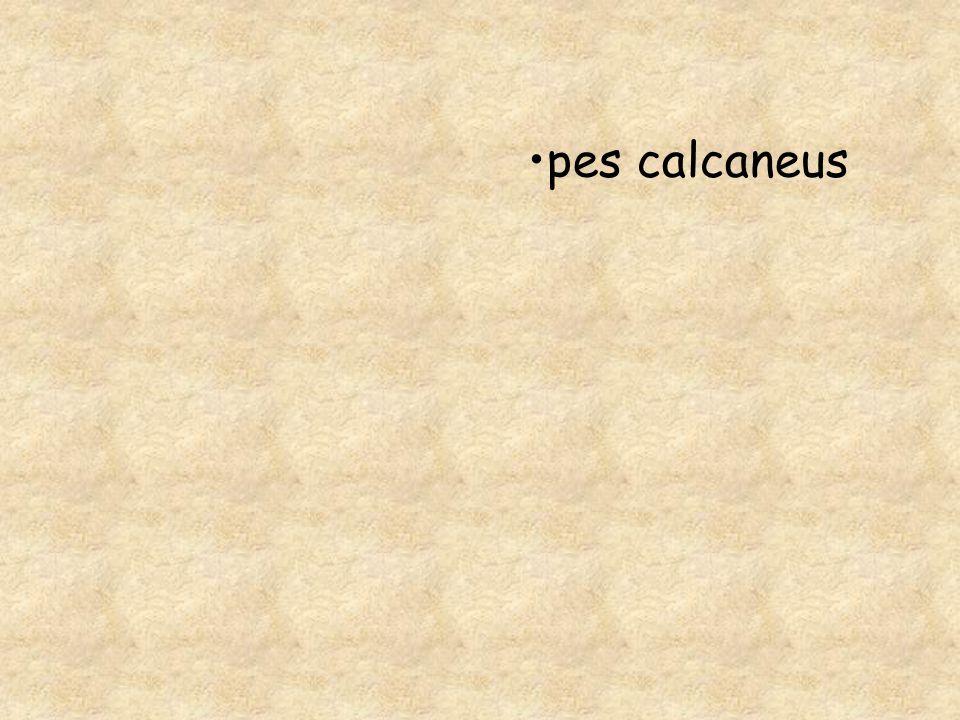 pes calcaneus