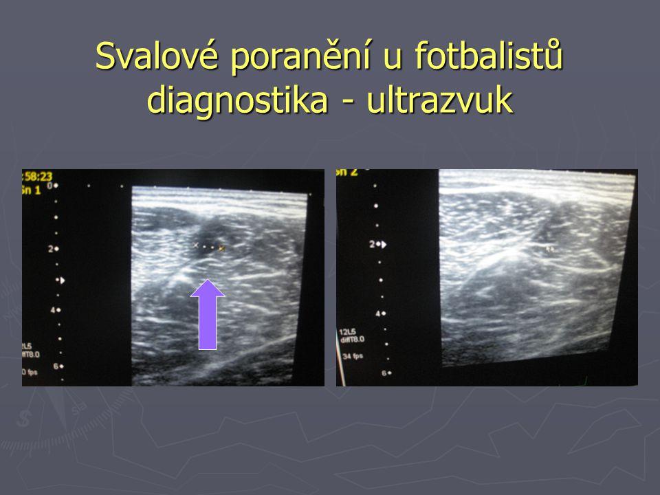 Svalové poranění u fotbalistů diagnostika - ultrazvuk