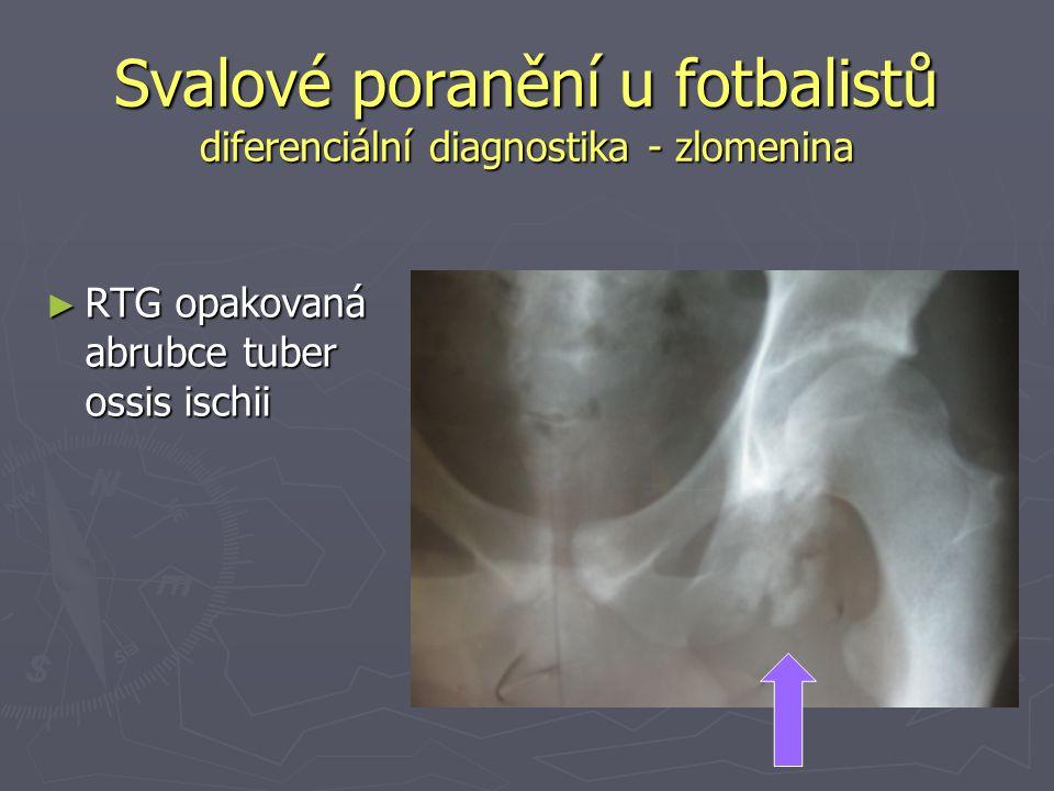 Svalové poranění u fotbalistů diferenciální diagnostika - zlomenina