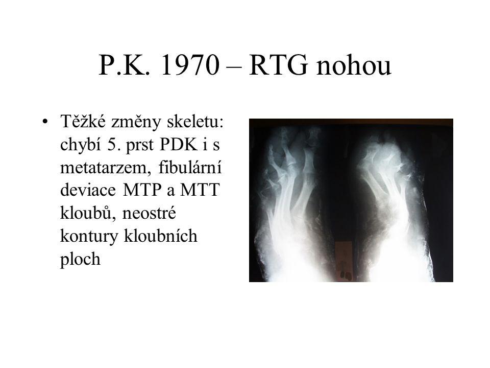P.K. 1970 – RTG nohou Těžké změny skeletu: chybí 5.