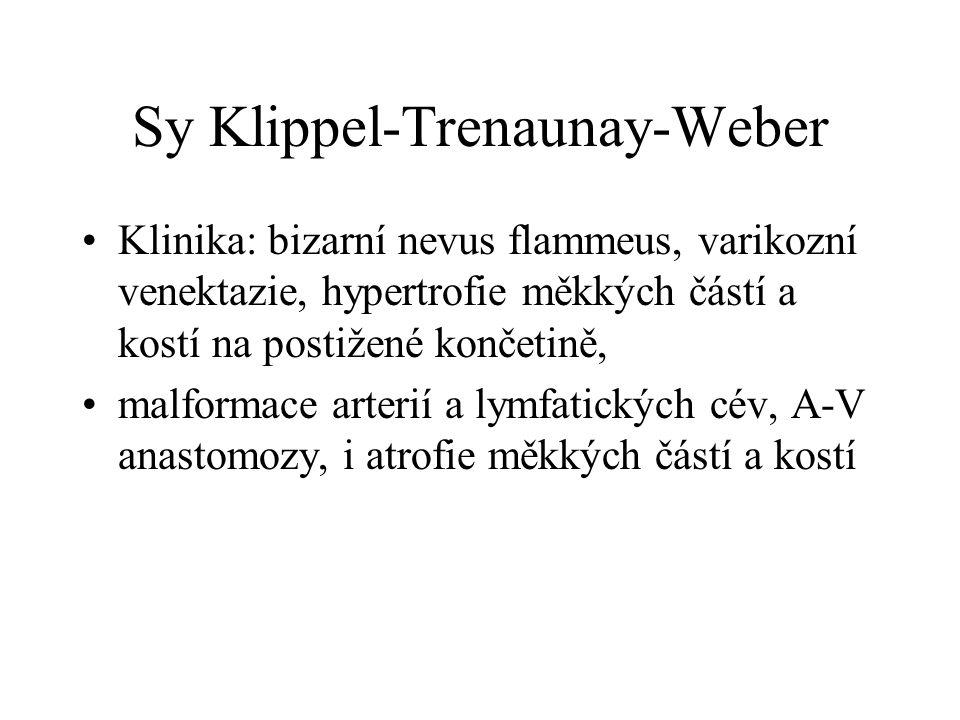 Sy Klippel-Trenaunay-Weber