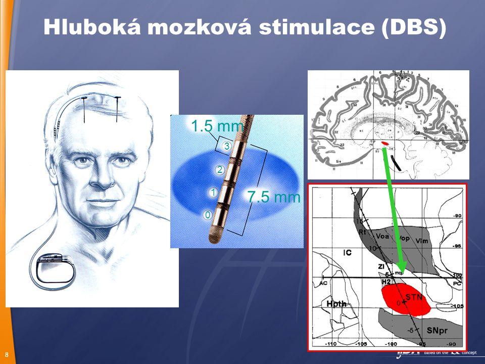 Hluboká mozková stimulace (DBS)