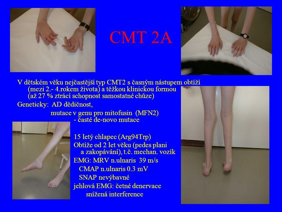 CMT 2A