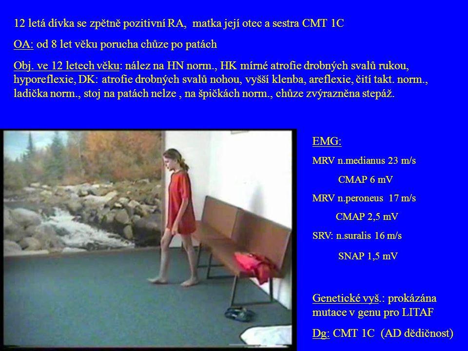 12 letá dívka se zpětně pozitivní RA, matka její otec a sestra CMT 1C