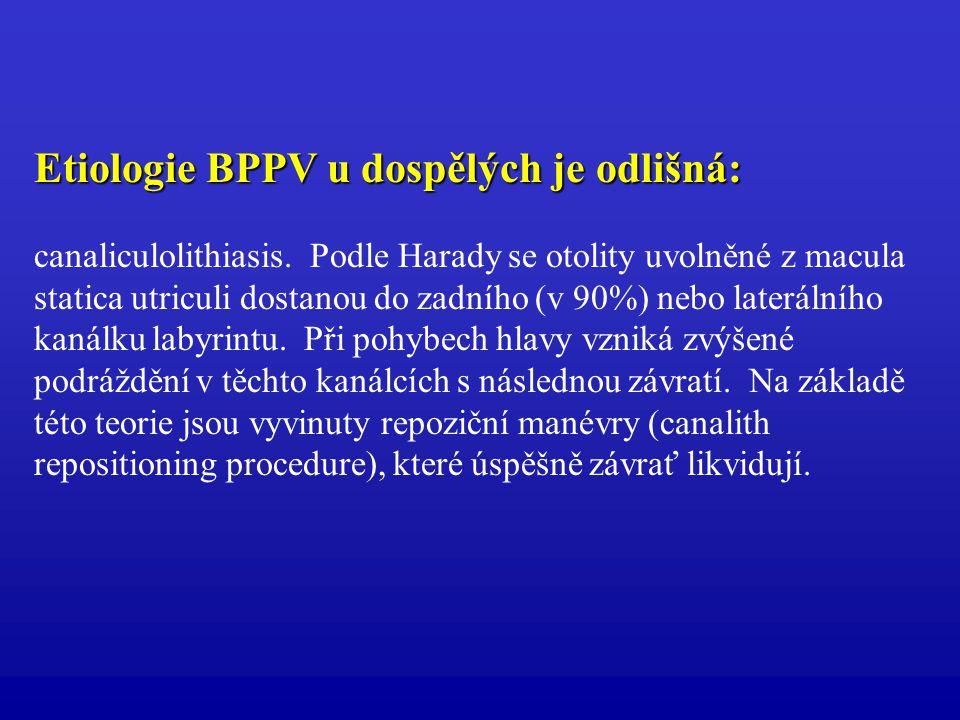 Etiologie BPPV u dospělých je odlišná: