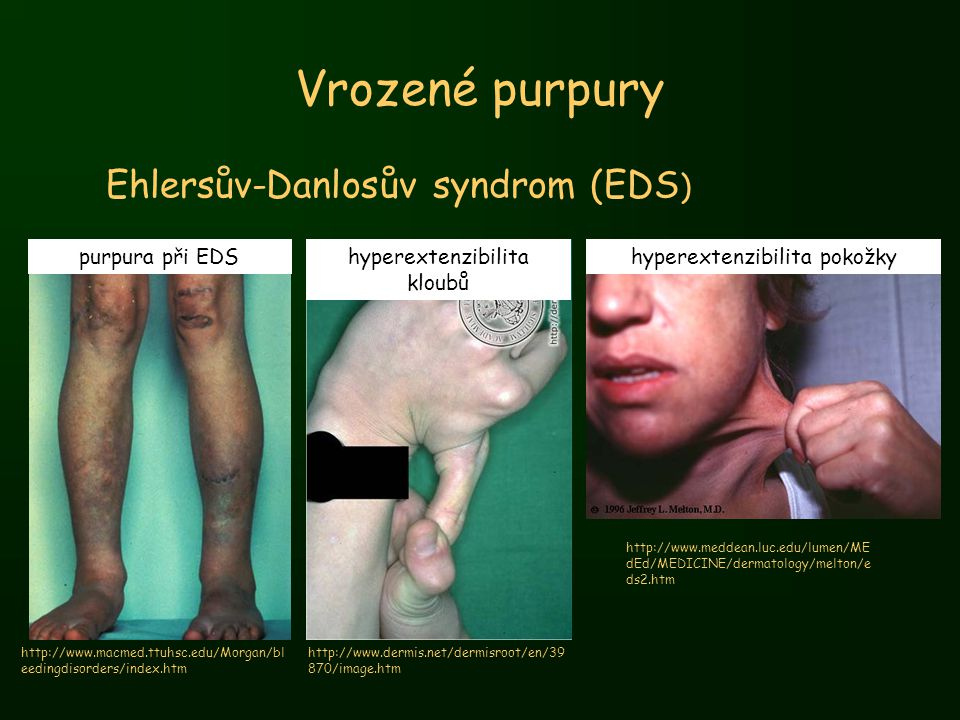 Vrozené purpury Ehlersův-Danlosův syndrom (EDS) purpura při EDS