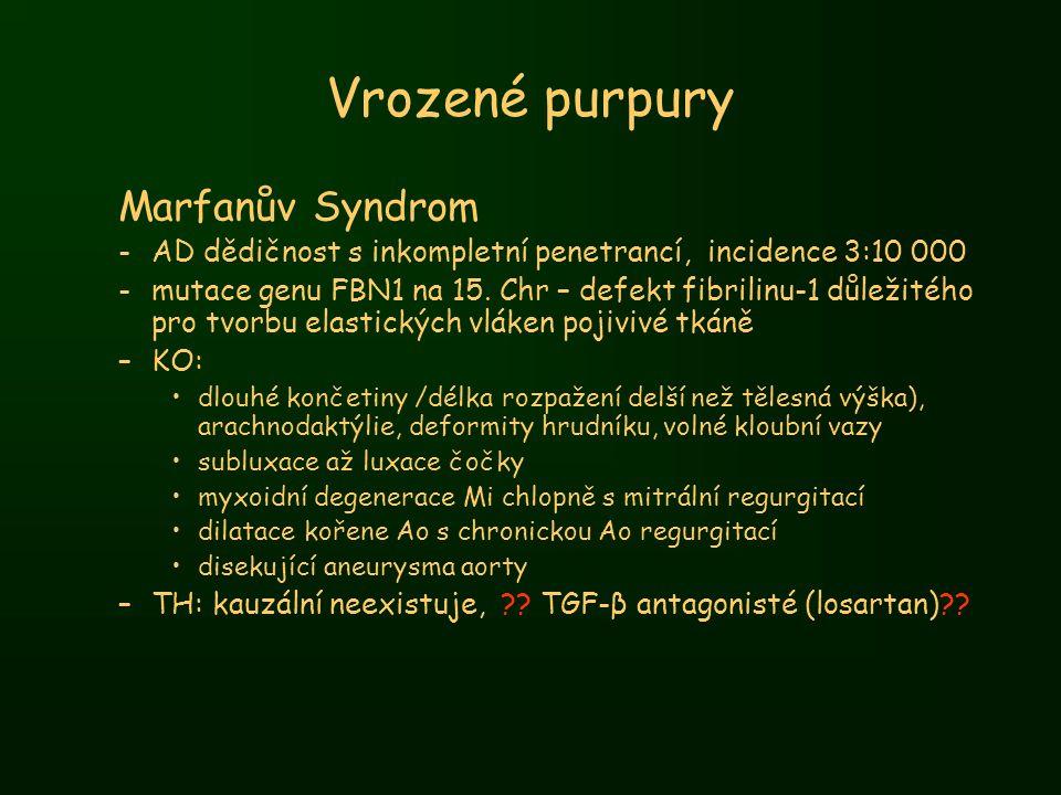 Vrozené purpury Marfanův Syndrom